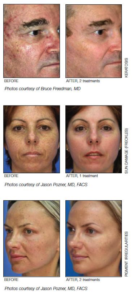 Superficial-Skin-Resurfacing