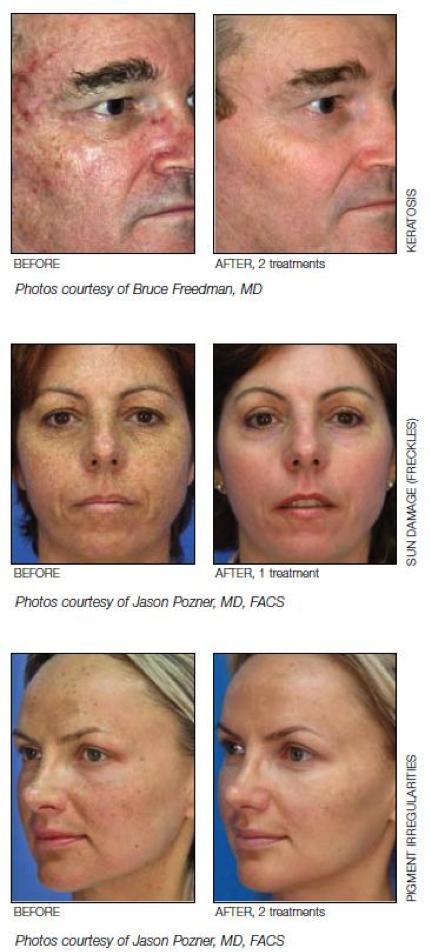 Superficial-Skin-Resurfacing