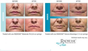 Radiese Results
